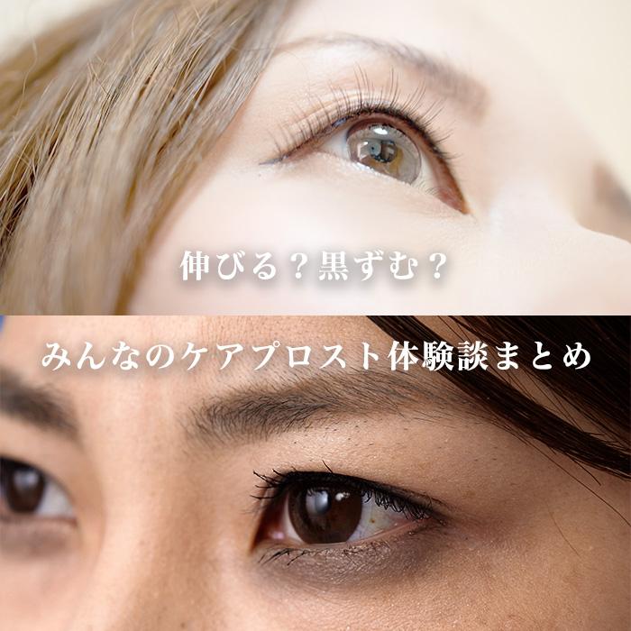 目元が黒ずむ、目がかゆくなるって本当?みんなのケアプロスト体験談
