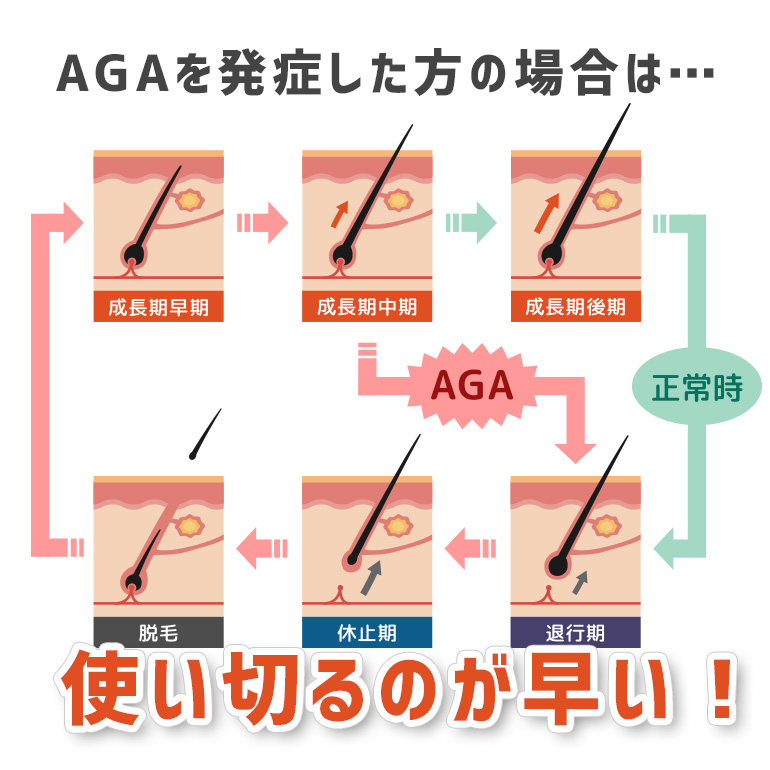 AGAの方は髪の毛を使い切るのが早い