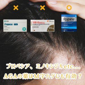 プロペシア、ザガーロ、ミノキシジルetc…AGA治療薬はM字ハゲにも有効か