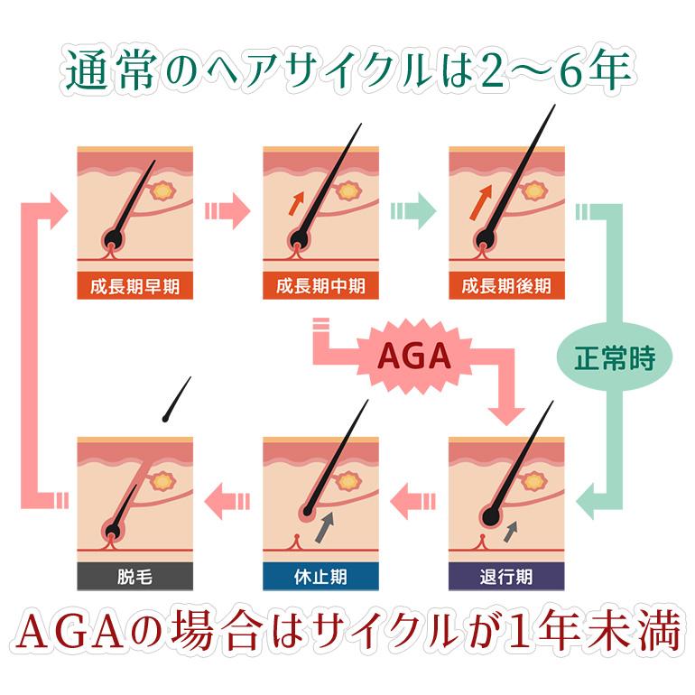 AGAが起こる理由