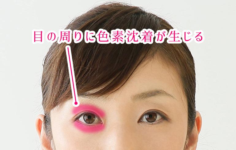 目の周りに色素沈着が生じる
