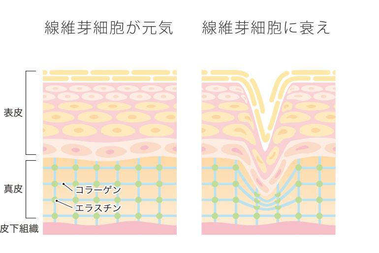 線維芽細胞による肌質の違い