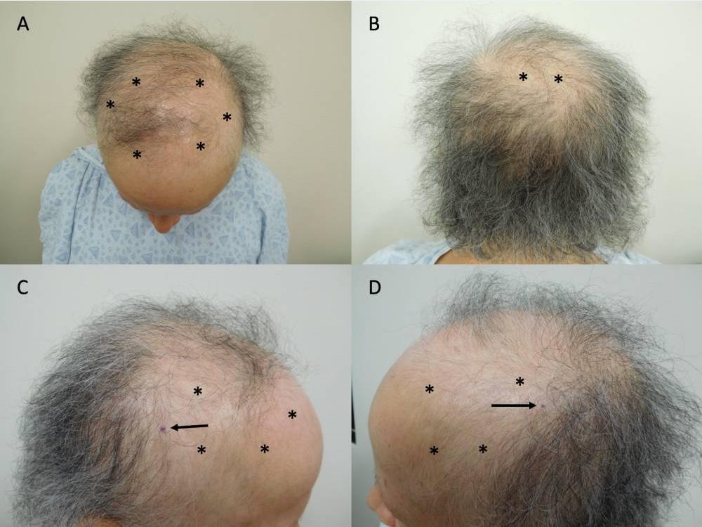 乳がん患者のミノキシジルによる治療前頭皮