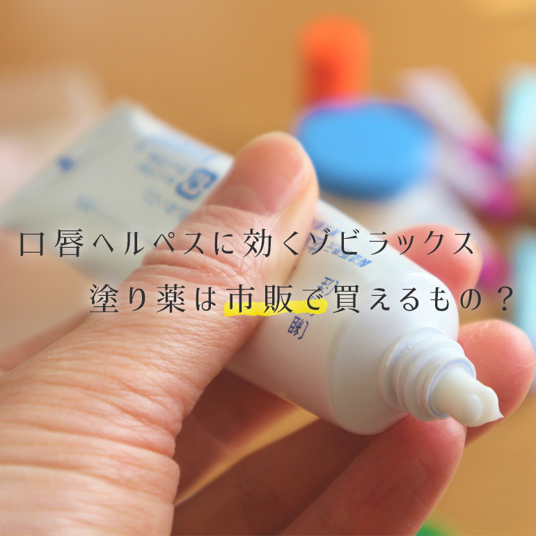 口唇ヘルペスに効くゾビラックス、塗り薬なら市販で買えるって本当?